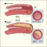 5 Makanan Penurun Kolesterol BerasaNikmat